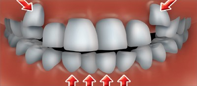 به هم ریختگی دندانه