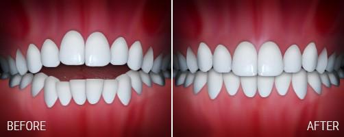 اپن بایت یا فاصله بین دندانهای جلویی بالا و پایین