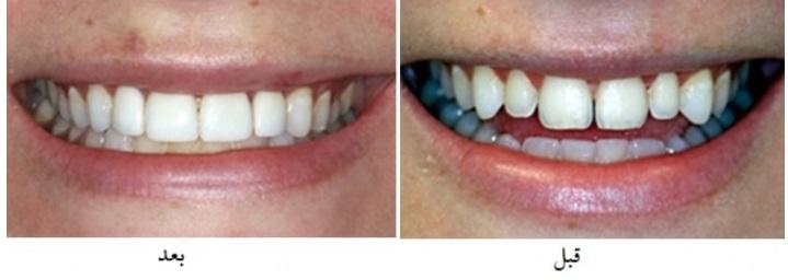دیاستم یا فاصله بین دندانها