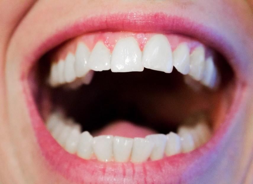 شلوغی، به هم ریختگی و کج بودن دندان