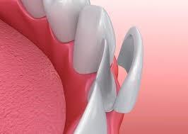 ارتودنسی و ونیر های دندانی