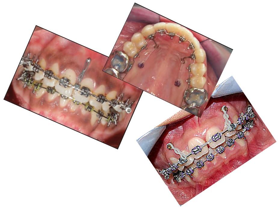 مینی ایمپلنت یا مینی اسکرو دندانی