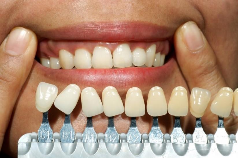 کامپوزیت و باندینگ دندان