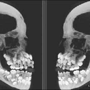 دندان اضافه