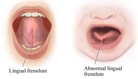 فرنوم و فرنکتومی (جراحی فرنوم)