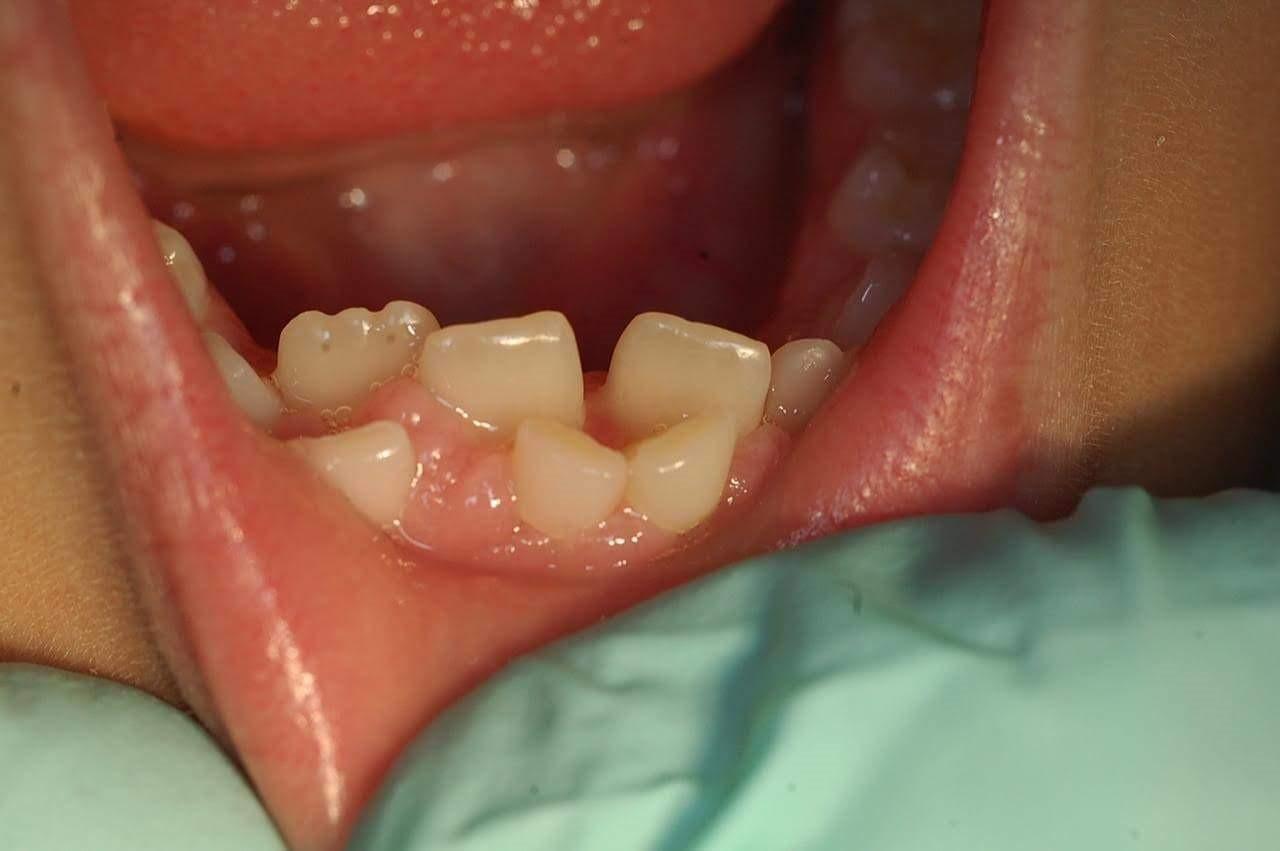 رشد دندان اضافه