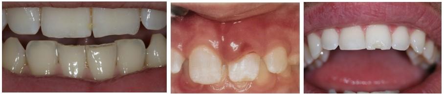 عادت جویدن ناخن و اثر آن روی دندان