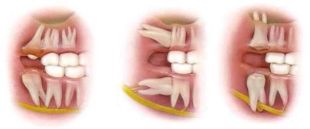 دندان عقل و درمان ارتودنسی