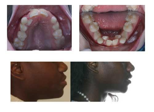 کشیدن دندان در طول درمان ارتودنسی