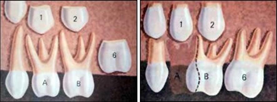زود افتادن دندان شیری کودکان