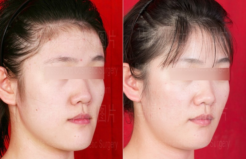 اثر ارتودنسی بر زیبایی صورت