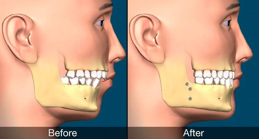 جراحی فک؛ جراحی ارتودنتیک یا ارتوگناتیک
