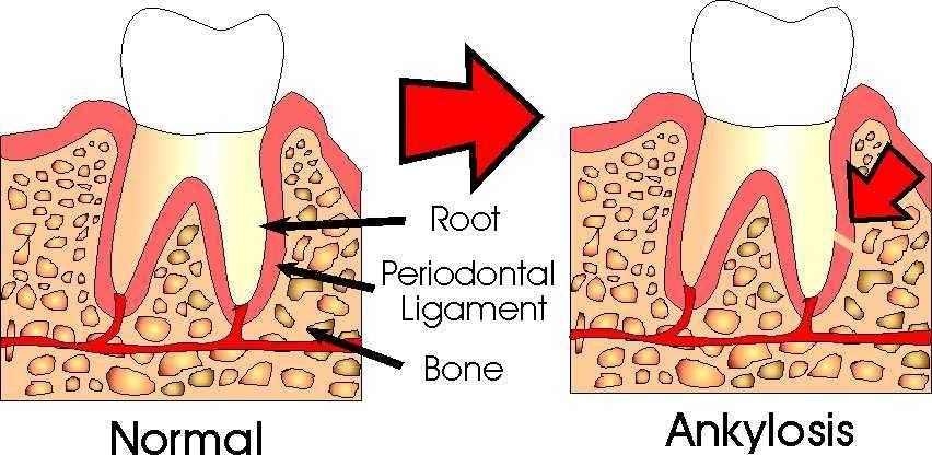 دندان فک جوش (انکیلوز دندان)