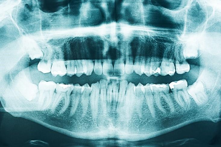 درمان ارتودنسی و تصویر رادیوگرافی