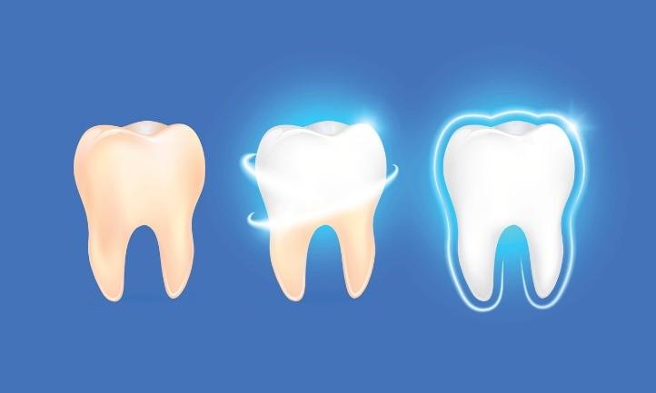 تقویت مینای دندان طی درمان ارتودنسی