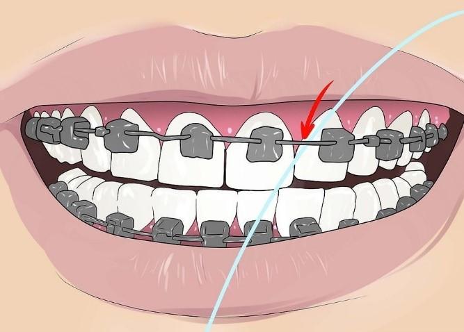 نحوه استفاده از نخ دندان در ارتودنسی