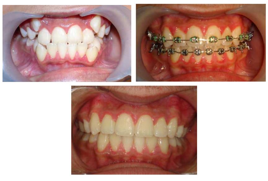 پوسیدگی دندان و درمان ارتودنسی - بخش دوم