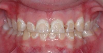 پوسیدگی دندان و درمان ارتودنسی