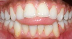 عادات بد دهانی منجر به مال اکلوژن
