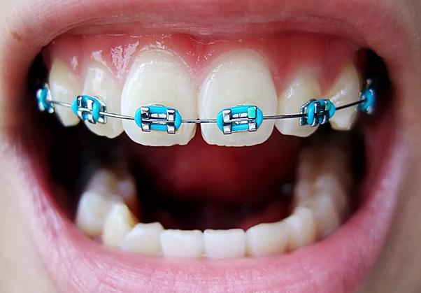 ارتودنسی و دندان های لق