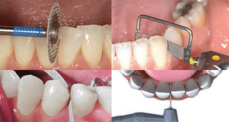 تراش دندان برای درمان ارتودنسی