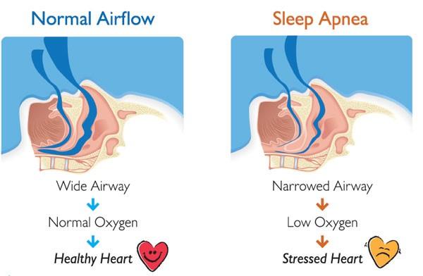 درمان آپنه خواب با ارتودنسی