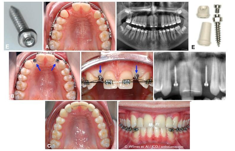 ارتودنسی و دندان درنیاوردن مادرزادی