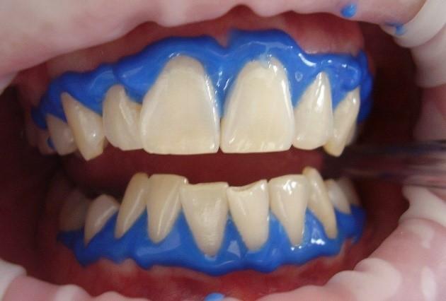 سفید کردن یا بلیچینگ دندان
