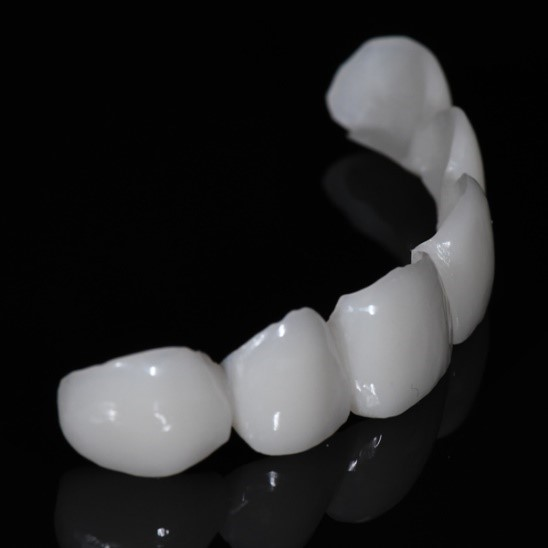 انواع ونیر دندانی