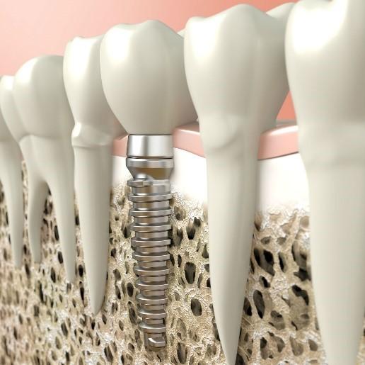 مزایا و معایب ایمپلنت دندانی