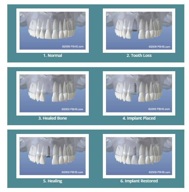 کاشت ایمپلنت های دندانی