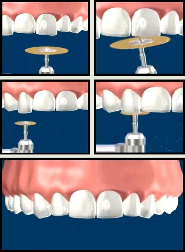 کانتور یا تغییر شکل دندان با تراش دندان