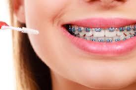 سفید نگه داشتن دندان در طول ارتودنسی