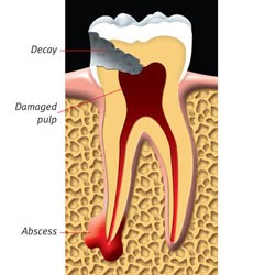 درمان ریشه یا عصب کشی دندان