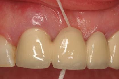 روکش دندانی