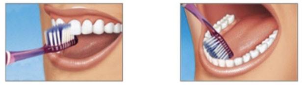 مسواک زدن در طول درمان ارتودنسی