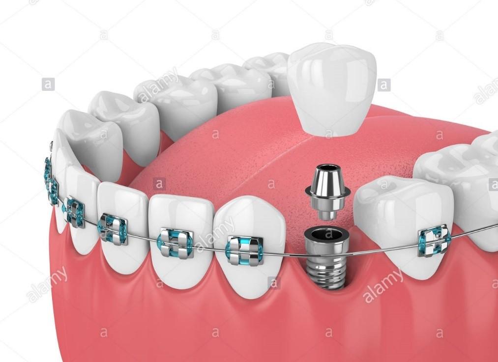 ارتودنسی دندان عصبکشی شده
