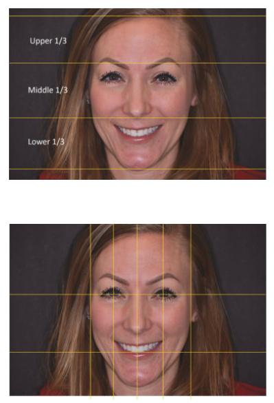 درمان طراحی لبخند