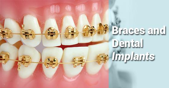 ارتودنسی قبل از انجام ایمپلنت (کاشت دندان) یا بعد از آن