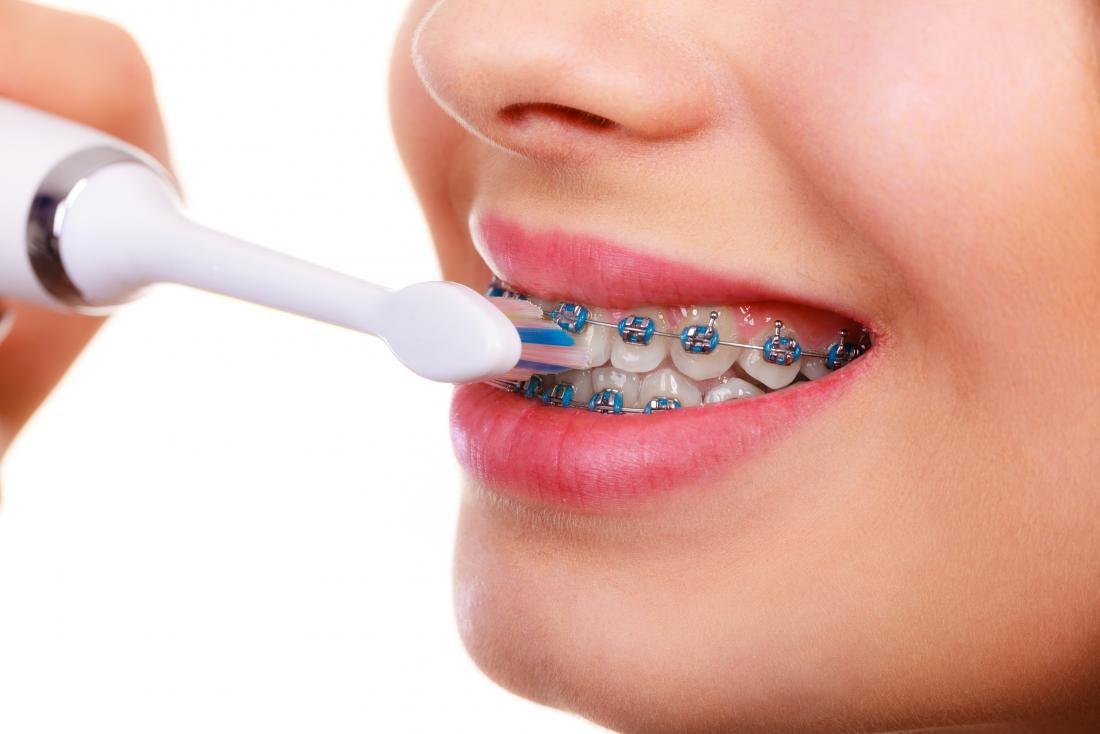 نقش دندانپزشک در درمان ارتودنسی