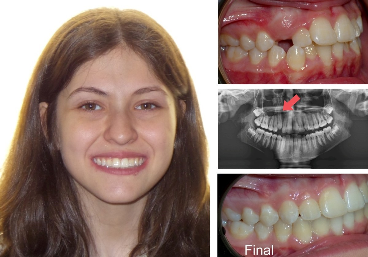 ارتودنسی دندان نهفته